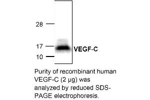Image no. 1 for Vascular Endothelial Growth Factor C (VEGFC) (Active) protein (ABIN413872)