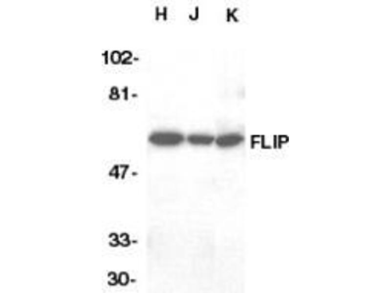 Western Blotting (WB) image for anti-CFLAR antibody (CASP8 and FADD-Like Apoptosis Regulator) (C-Term) (ABIN499848)