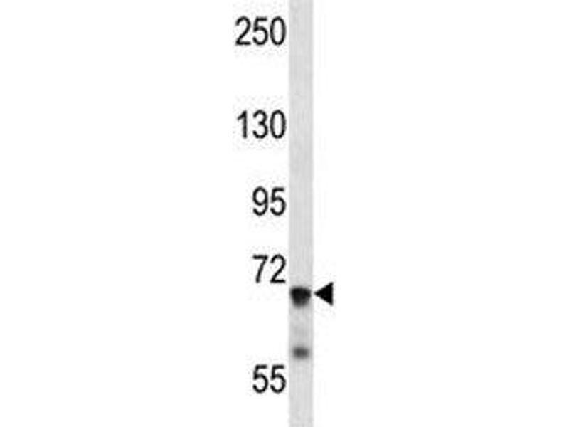 Western Blotting (WB) image for anti-IL1R1 antibody (Interleukin 1 Receptor, Type I) (AA 422-450) (ABIN3031430)