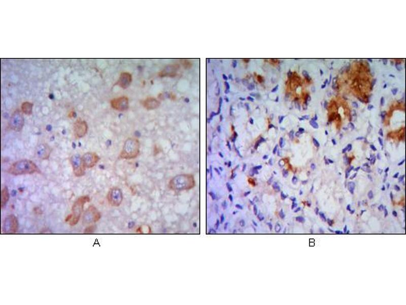 Immunohistochemistry (IHC) image for anti-ERN1 抗体 (Endoplasmic Reticulum To Nucleus Signaling 1) (AA 282-433) (ABIN969116)