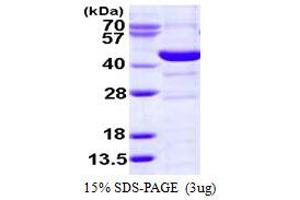 Image no. 1 for Spermine Synthase, SMS (SMS) (AA 1-366) protein (His tag) (ABIN668002)