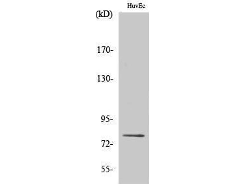 Western Blotting (WB) image for anti-PKC delta antibody (Protein Kinase C, delta) (pSer645) (ABIN3182728)