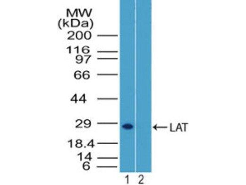 Western Blotting (WB) image for anti-LAT antibody (Linker For Activation of T Cells) (ABIN4330393)