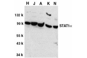 anti-Signal Transducer and Activator of Transcription 1, 91kDa (STAT1) (C-Term) antibody