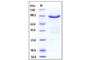 Image no. 1 for phosphorylase Kinase, gamma 1 (Muscle) (PHKG1) (AA 1-387) protein (GST tag) (ABIN2003751)