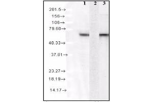 Image no. 1 for Heat Shock 70kDa Protein 8 (HSPA8) ELISA Kit (ABIN2964823)