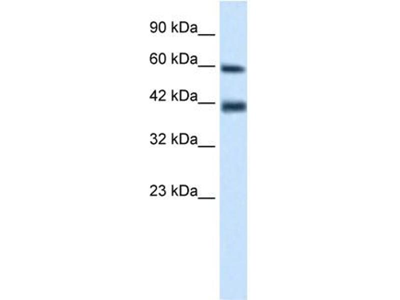 Western Blotting (WB) image for anti-Tripartite Motif Containing 31 (TRIM31) (N-Term) antibody (ABIN2775972)