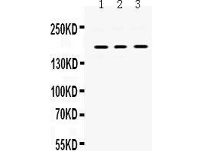 Western Blotting (WB) image for anti-Platelet-Derived Growth Factor Receptor, alpha Polypeptide (PDGFRA) (AA 968-1002), (C-Term) antibody (ABIN3043897)