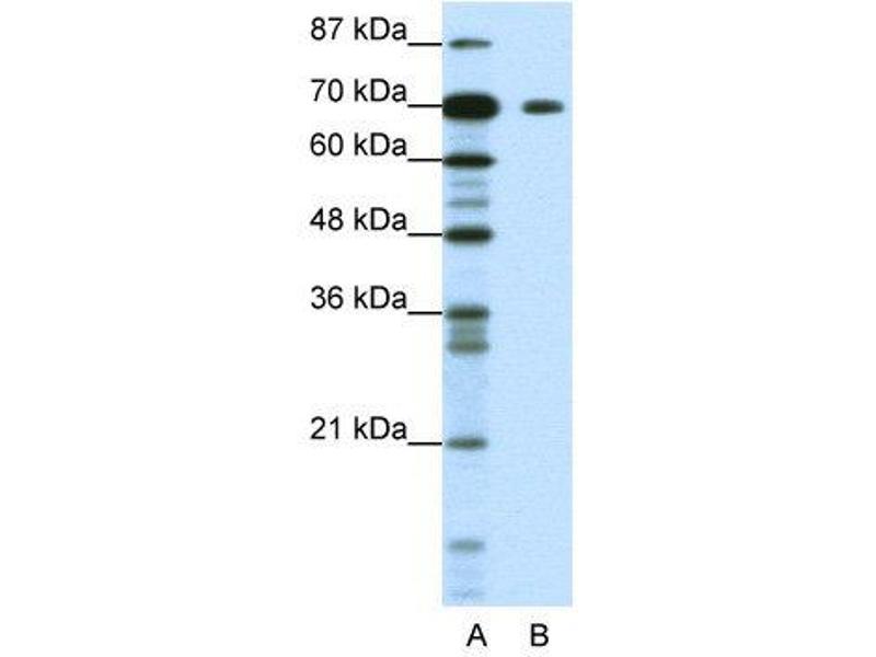 Western Blotting (WB) image for anti-Kelch-Like 26 (Drosophila) (KLHL26) (C-Term) antibody (ABIN183787)