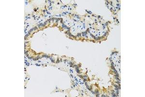 Image no. 4 for anti-Family with Sequence Similarity 20, Member A (FAM20A) antibody (ABIN6140455)