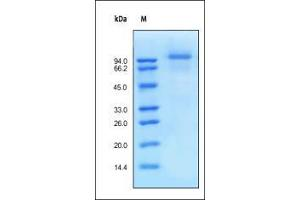 Image no. 1 for Epidermal Growth Factor Receptor (EGFR) (AA 25-645) (Active) protein (His tag) (ABIN6253725)