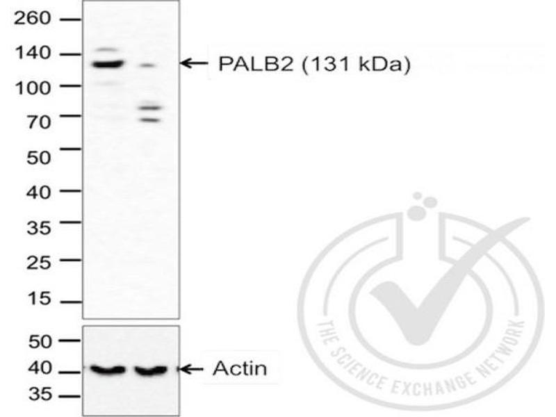Western Blotting (WB) image for anti-Partner and Localizer of BRCA2 (PALB2) (AA 1100-1150) antibody (ABIN670536)