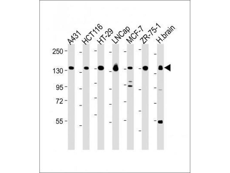 Western Blotting (WB) image for anti-Myosin VI (MYO6) (C-Term) antibody (ABIN4337147)
