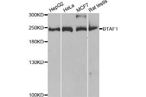 Image no. 1 for anti-TBP-Associated Factor 172 (BTAF1) antibody (ABIN6717992)