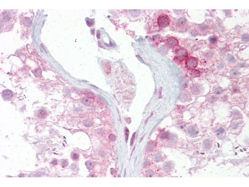 Immunohistochemistry (IHC) image for anti-Wingless-Type MMTV Integration Site Family, Member 2B (WNT2B) (N-Term) antibody (ABIN2776723)