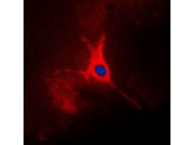 Image no. 1 for anti-Tumor-Associated Calcium Signal Transducer 2 (TACSTD2) (Center) antibody (ABIN2707134)