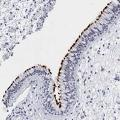 anti-Coiled-Coil Domain Containing 181 (CCDC181) antibody