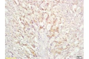 Immunohistochemistry (Paraffin-embedded Sections) (IHC (p)) image for anti-BAD antibody (BCL2-Associated Agonist of Cell Death) (AA 140-168) (ABIN674709)