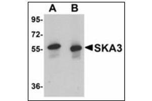Image no. 2 for anti-Spindle and Kinetochore Associated Complex Subunit 3 (SKA3) (C-Term) antibody (ABIN783205)