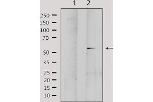 Image no. 3 for anti-Matrix Metallopeptidase 1 (Interstitial Collagenase) (MMP1) antibody (ABIN6263290)