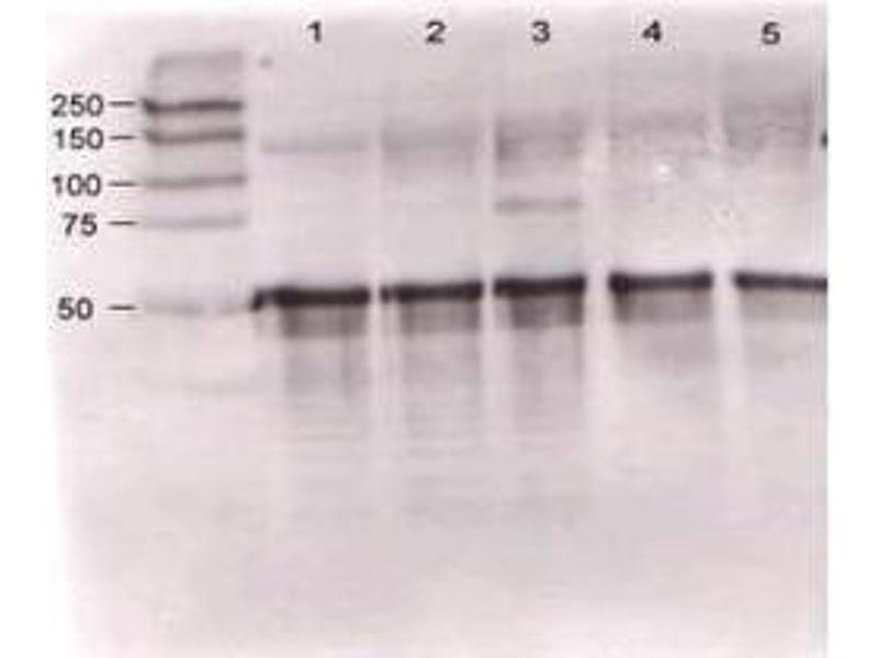 Image no. 1 for anti-Angiopoietin 1 (ANGPT1) antibody (ABIN95109)