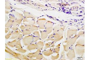 Immunohistochemistry (IHC) image for anti-Collagen Triple Helix Repeat Containing 1 (CTHRC1) (AA 60-110) antibody (ABIN759281)