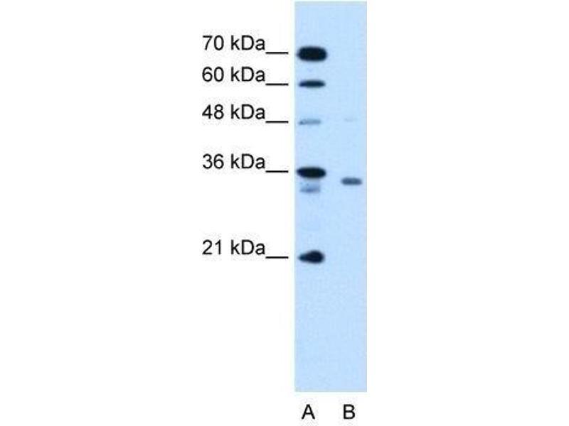 Western Blotting (WB) image for anti-RCE1 (N-Term) antibody (ABIN4349745)
