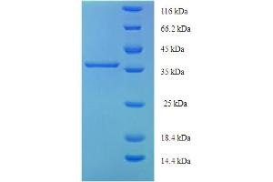 Image no. 1 for Cytoglobin (CYGB) (AA 1-190), (full length) protein (His-SUMO Tag) (ABIN5709375)