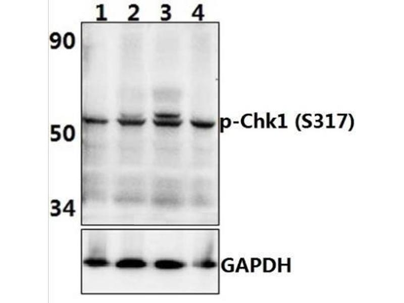 Western Blotting (WB) image for anti-CHEK1 antibody (Checkpoint Kinase 1) (pSer317) (ABIN4297951)