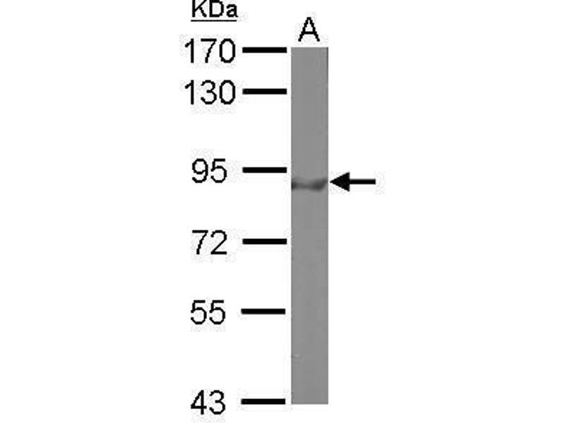 Western Blotting (WB) image for anti-Forkhead Box O3 (FOXO3) (C-Term) antibody (ABIN2854686)
