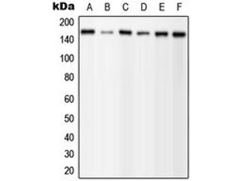 Western Blotting (WB) image for anti-phospholipase C, gamma 1 (PLCG1) (C-Term), (pTyr1253) antibody (ABIN2705140)