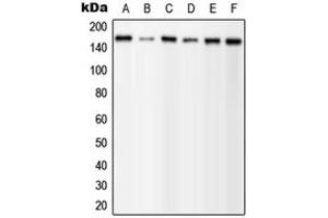 Western Blotting (WB) image for anti-Phospholipase C gamma 1 antibody (phospholipase C, gamma 1) (C-Term) (ABIN2705140)