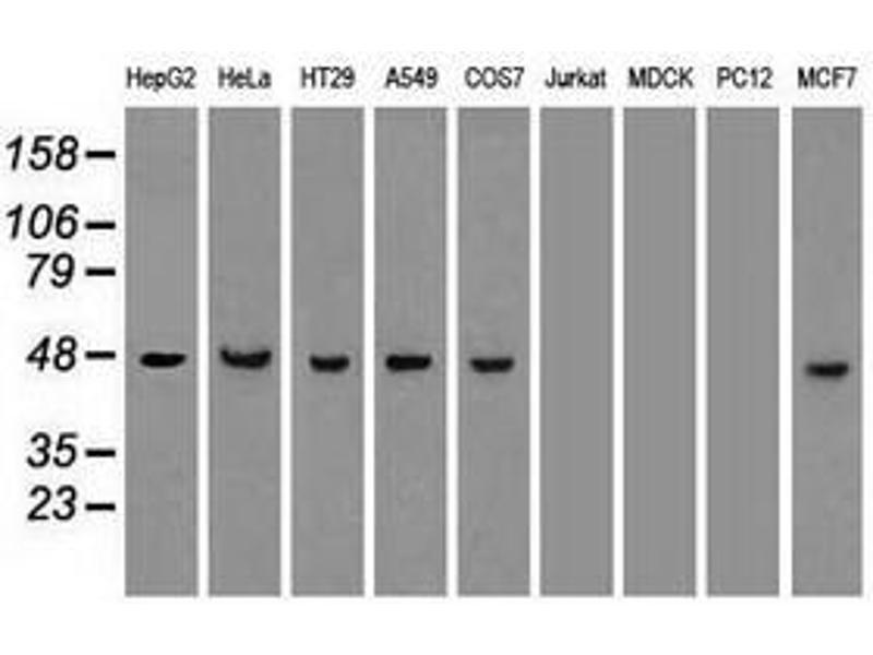 image for anti-KRT18 antibody (Keratin 18) (AA 69-372) (ABIN1491638)