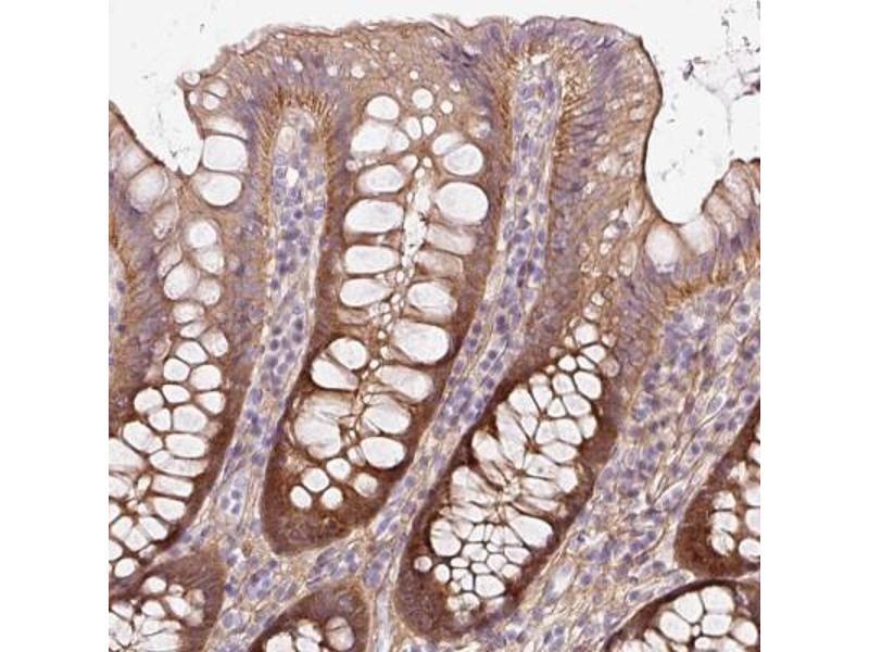 Immunofluorescence (Paraffin-embedded Sections) (IF (p)) image for anti-Son of Sevenless Homolog 2 (Drosophila) (SOS2) antibody (ABIN4355192)