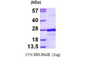 SDS-PAGE (SDS) image for Protein tyrosine Phosphatase Type IVA, Member 2 (PTP4A2) (AA 1-167) protein (His tag) (ABIN667818)