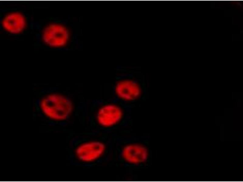 Image no. 2 for anti-Mitogen-Activated Protein Kinase 14 (MAPK14) (pThr180), (pTyr182) antibody (ABIN6267706)