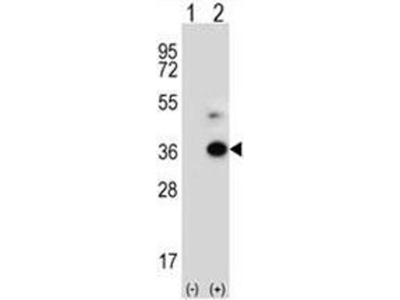 Western Blotting (WB) image for anti-Angiopoietin-Like 7 (ANGPTL7) (AA 315-346), (C-Term) antibody (ABIN950416)