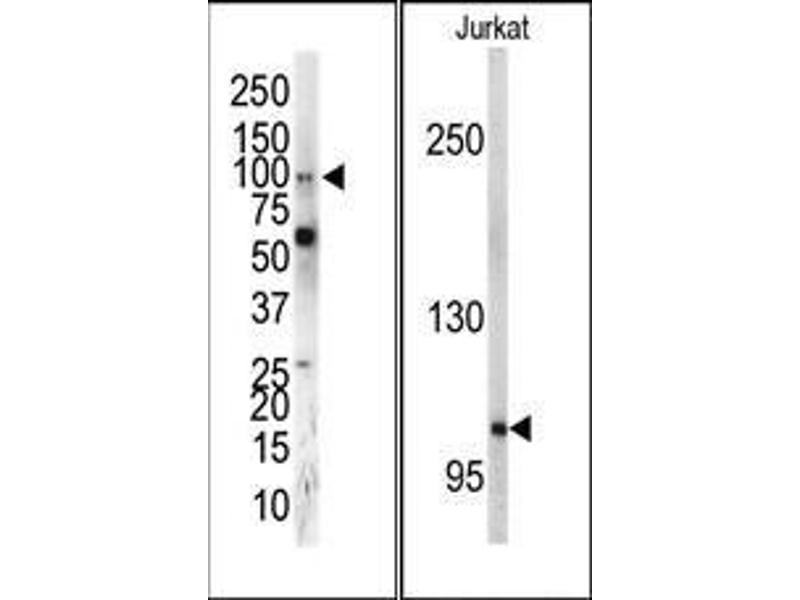 Western Blotting (WB) image for anti-EPH Receptor A5 antibody (EPHA5) (C-Term) (ABIN359798)