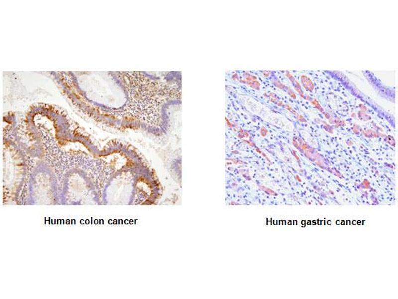 Immunohistochemistry (IHC) image for anti-EPH Receptor A2 (EPHA2) (AA 559-976) antibody (ABIN317512)