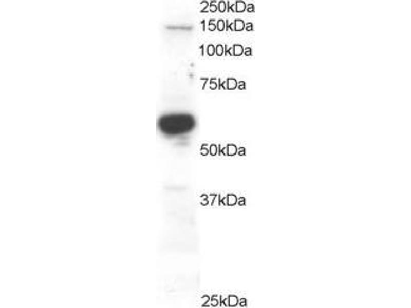Western Blotting (WB) image for anti-Rac GTPase Activating Protein 1 (RACGAP1) (C-Term) antibody (ABIN184690)
