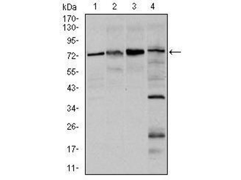 Western Blotting (WB) image for anti-Forkhead Box O1 (FOXO1) antibody (ABIN4880727)