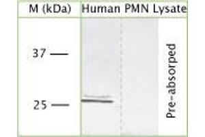 Western Blotting (WB) image for anti-Proteinase 3 (PRTN3) (Internal Region) antibody (ABIN350765)