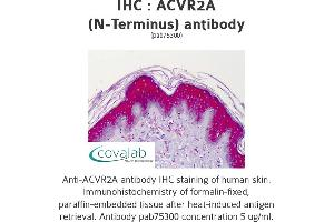 Image no. 1 for anti-Activin A Receptor, Type IIA (ACVR2A) (N-Term) antibody (ABIN4889799)