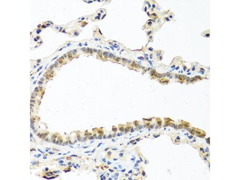 Immunohistochemistry (IHC) image for anti-Ras-Related C3 Botulinum Toxin Substrate 2 (Rho Family, Small GTP Binding Protein Rac2) (RAC2) antibody (ABIN1874525)