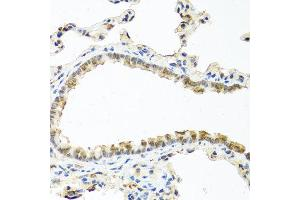 Immunohistochemistry (IHC) image for anti-RAC2 antibody (Ras-Related C3 Botulinum Toxin Substrate 2 (Rho Family, Small GTP Binding Protein Rac2)) (ABIN1874525)