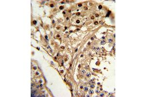 Image no. 2 for anti-Kruppel-Like Factor 6 (KLF6) (AA 159-186), (C-Term) antibody (ABIN5536011)