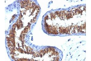 Image no. 1 for anti-Major Vault Protein (MVP) antibody (ABIN6941286)