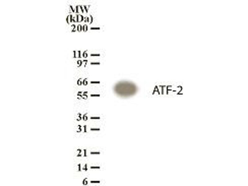 Image no. 1 for anti-ATF2 antibody (Activating Transcription Factor 2) (ABIN123294)