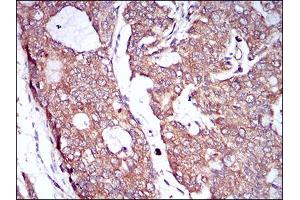 Immunohistochemistry (IHC) image for anti-Colony Stimulating Factor 1 Receptor (CSF1R) (AA 344-497) antibody (ABIN1724928)