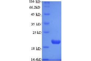 Image no. 1 for Prune Homolog (Drosophila) (PRUNE) (AA 1-168) protein (His tag) (ABIN5711483)